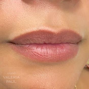 Comparaison dermopigmentation 2D des lèvres